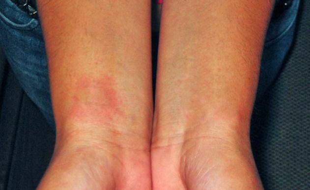 Аллергическая проба